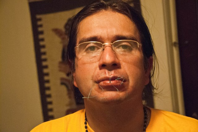 Jorge Parra, president of ASOTRECOL sewed his lips shut in a final hunger strike Nov. 20th.